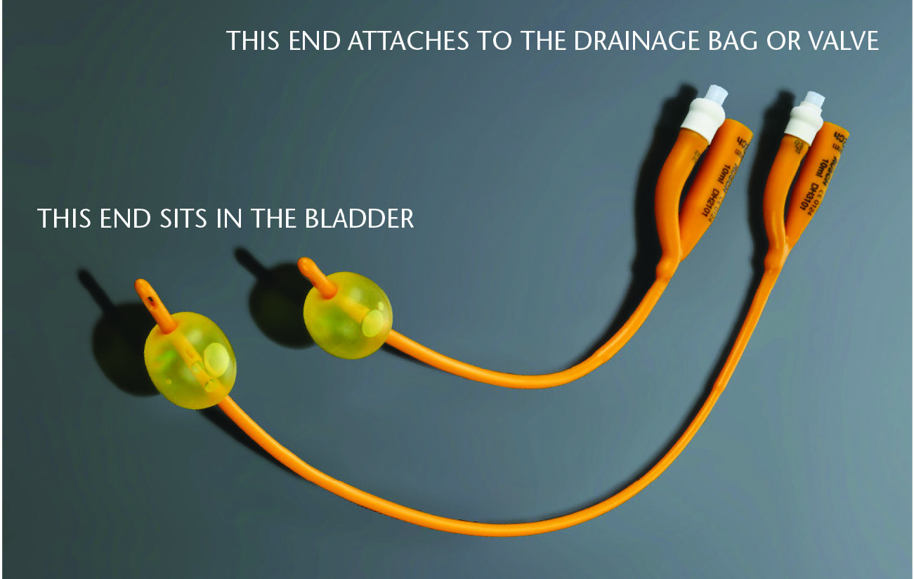 What Is A Catheter Bladder Bowel Community